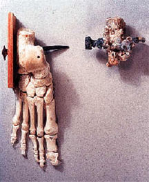 Bones of a Crucified Man Discovered Outside of Jerusalem in 1968